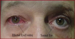 preview-full-uveitis-symptoms