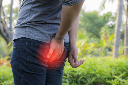 The Best Ways to Avoid Hemorrhoids: Are Your Habits Causing Flare Ups?
