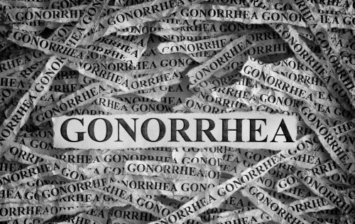 What are the Major Causes and Risk Factors Associated with Gonorrhea?