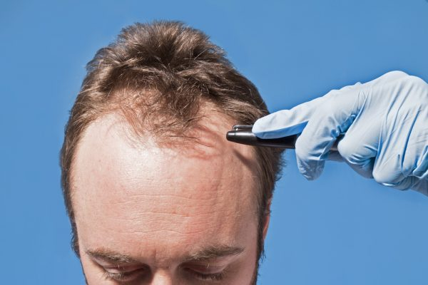 5 Ways You Can Actually Stop Yourself From Going Completely Bald